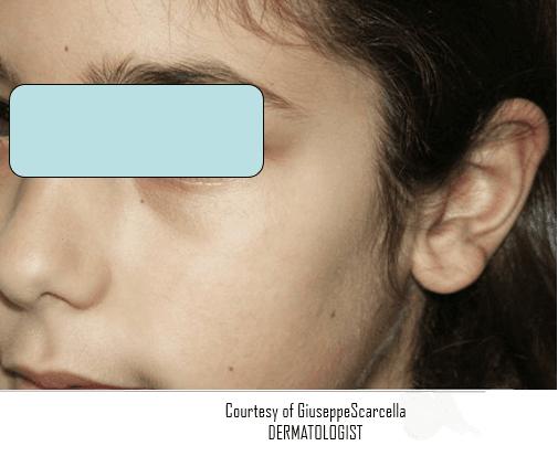 Immagine del viso di un ragazzo senza macchia sul zigomo sinistro