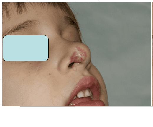 Immagine di viso di un uomo senza una verruca nera sulla labbra