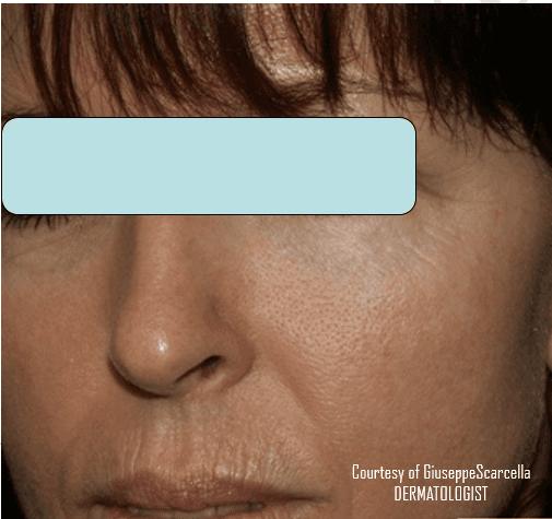 Immagine di viso di un bambino con un'eruzione cutanea al naso