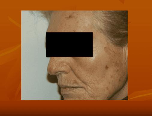 Immagine di una donna con macchie sul fronte e guance