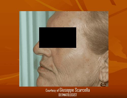 Macchie sulle guance e sul mento di una donna