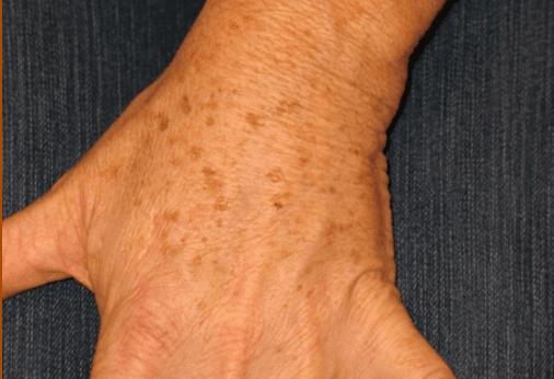 Gluteo di una donna senza  vene varicose