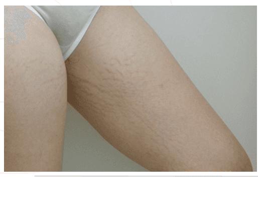 Immagine di coscia di una donna senza vene varicose