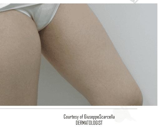 Coscia di una donna senza vene varicose