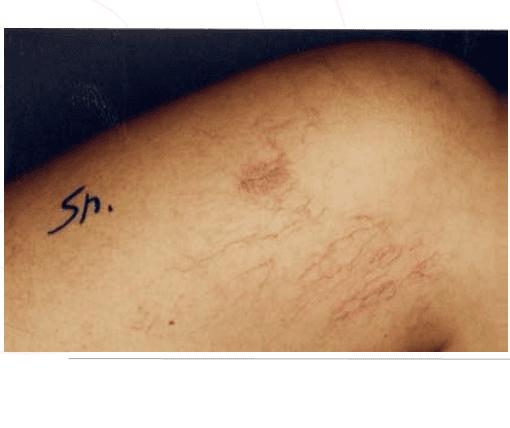 Vene varicose sulla coscia di una donna