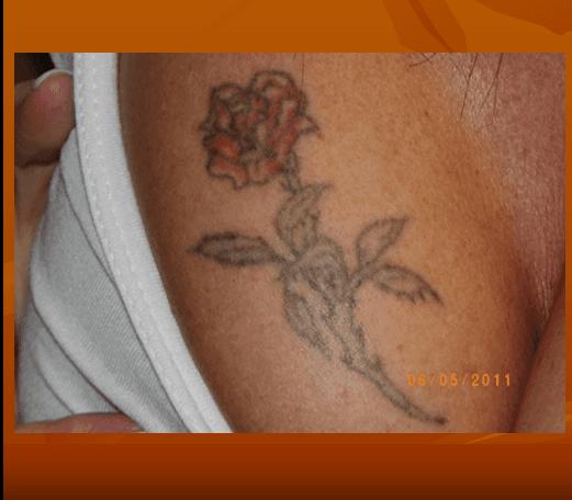Vista del decoltè di una donna con tatuaggio sul seno