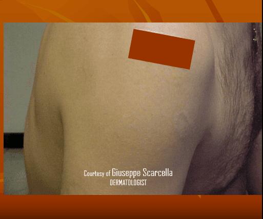 Un tatuaggio di rosa sul braccio di un uomo