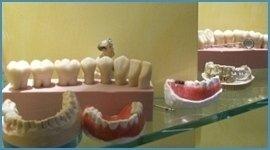 apparecchi denti
