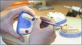 persona mentre lavora su una protesi dentale in gesso
