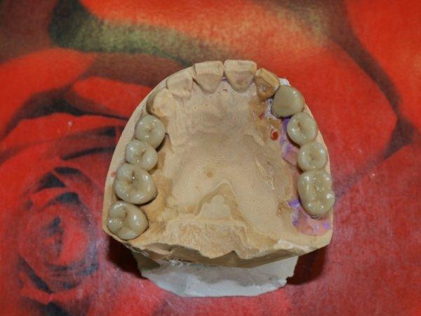 impronte dentali