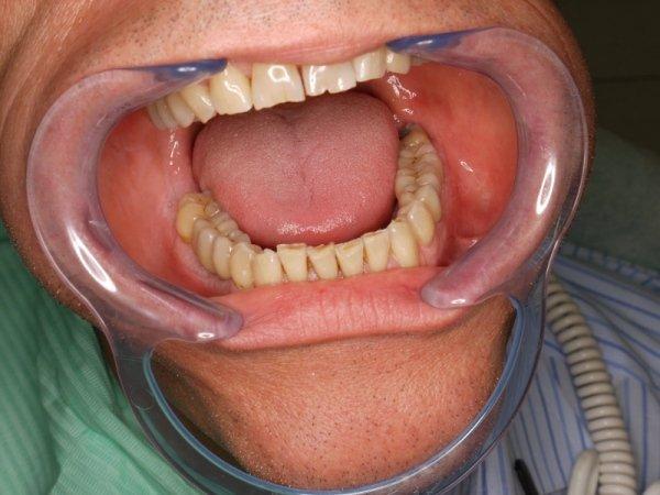 denti ricostruiti