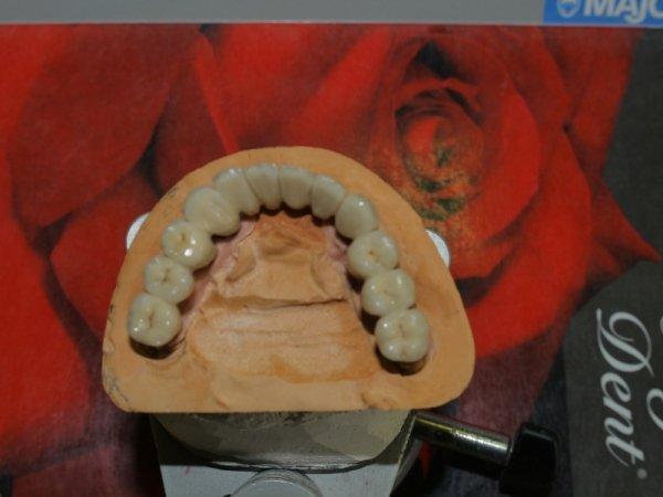 denti ceramica