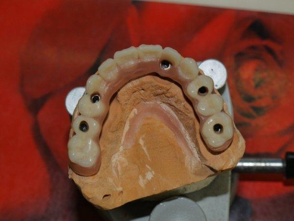 dettaglio denti