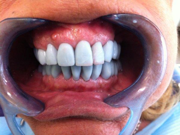 denti paziente