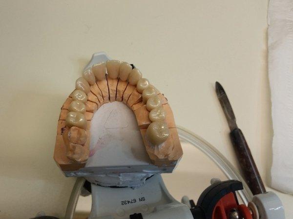 traccia denti