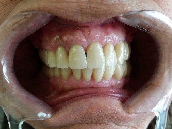 denti applicati