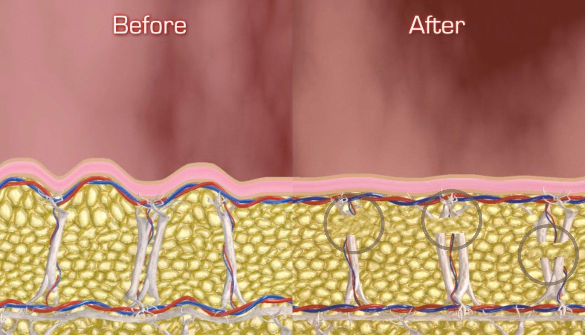 Cellulite Treatment by Dr. Massoudi