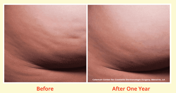 cellulite before and after picture