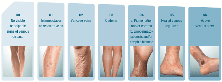 1176a61ccf Chronic Venous Insufficiency | Glendale Spider & Varicose Vein Removal