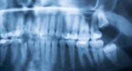 esame diagnostico, esame odontoiatrico, controllo denti