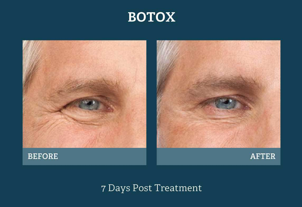 Botox Injections In San Antonio Tx Skin Specialists Of