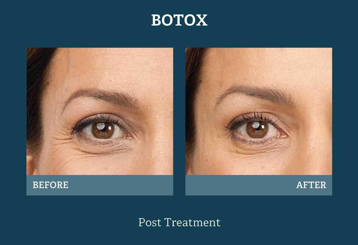 Botox Injections San Antonio, TX