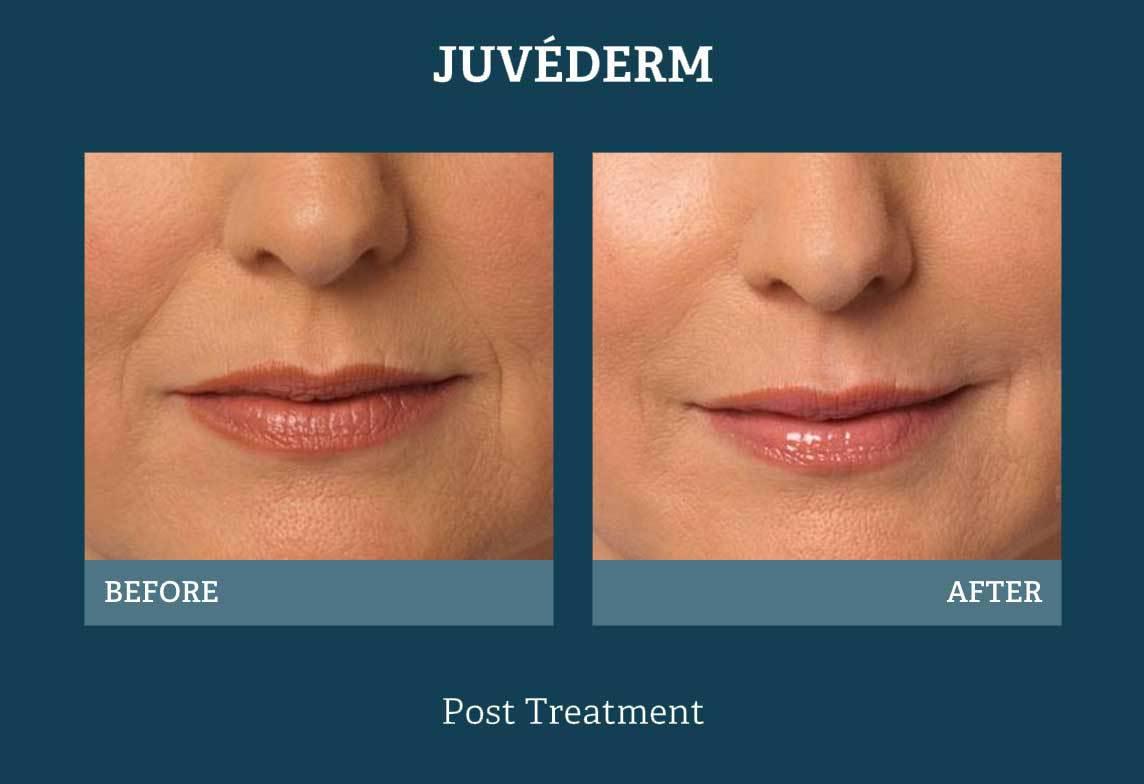 Best Dermatologist Amp Lip Fillers In San Antonio Tx