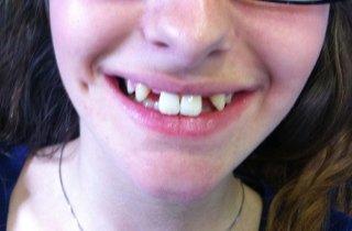 Paziente prima dell'applicazione di fast Smile