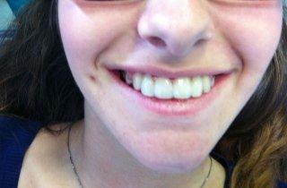 Paziente dopo l'applicazione di Fast Smile