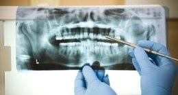 Chirurgia estrattiva e preprotesistica