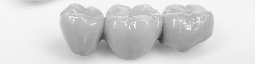 Dental bridges in Woodvale