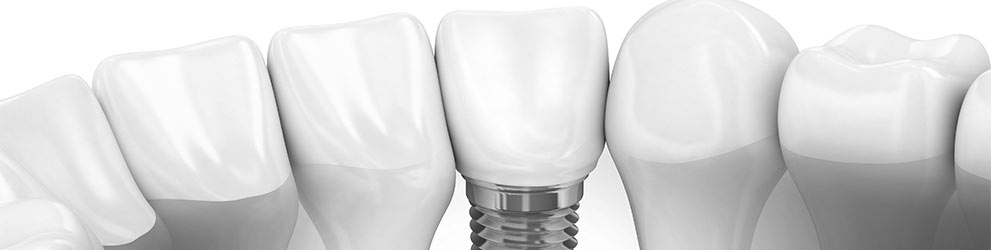 Dental implants services in Maddington