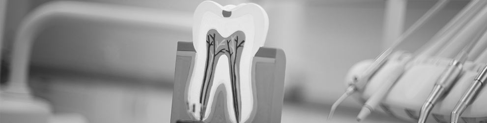Root canal therapy in Maddington Aim Dental