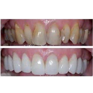 studio dentistico, studio odontoiatrico, chirurgia orale, implantologia, pulizia dentale