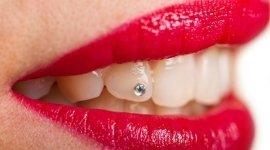 applicazione brillantino, estetica dentale, brillante
