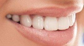 BleachBright PRO - Bellezza Dentale presso studio dentistico Azzi, Follonica (GR)
