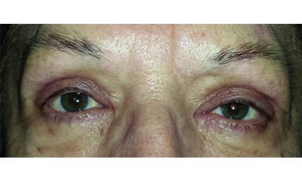 Occhi di una persona