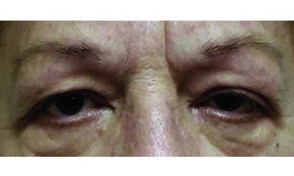 Occhi di persona anziana