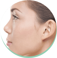 interventi al naso, interventi di rinoplastica, plastica del naso