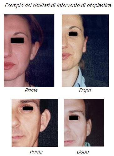 otoplastica, riduzione orecchie a sventola, rimodellamento orecchie