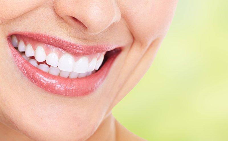 una donna con denti bianchi