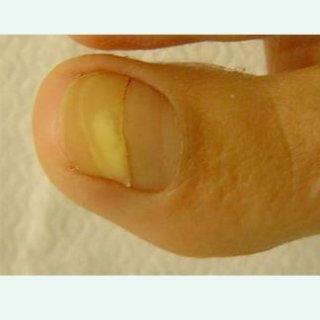cura unghia incarnita