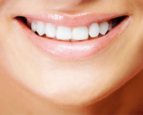 Teeth whitening - Folkestone - Cheriton Dental Surgery - Teeth