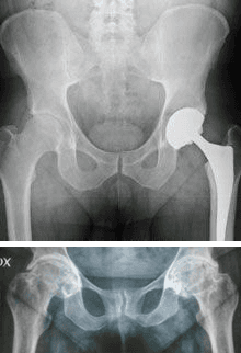 patologie anca
