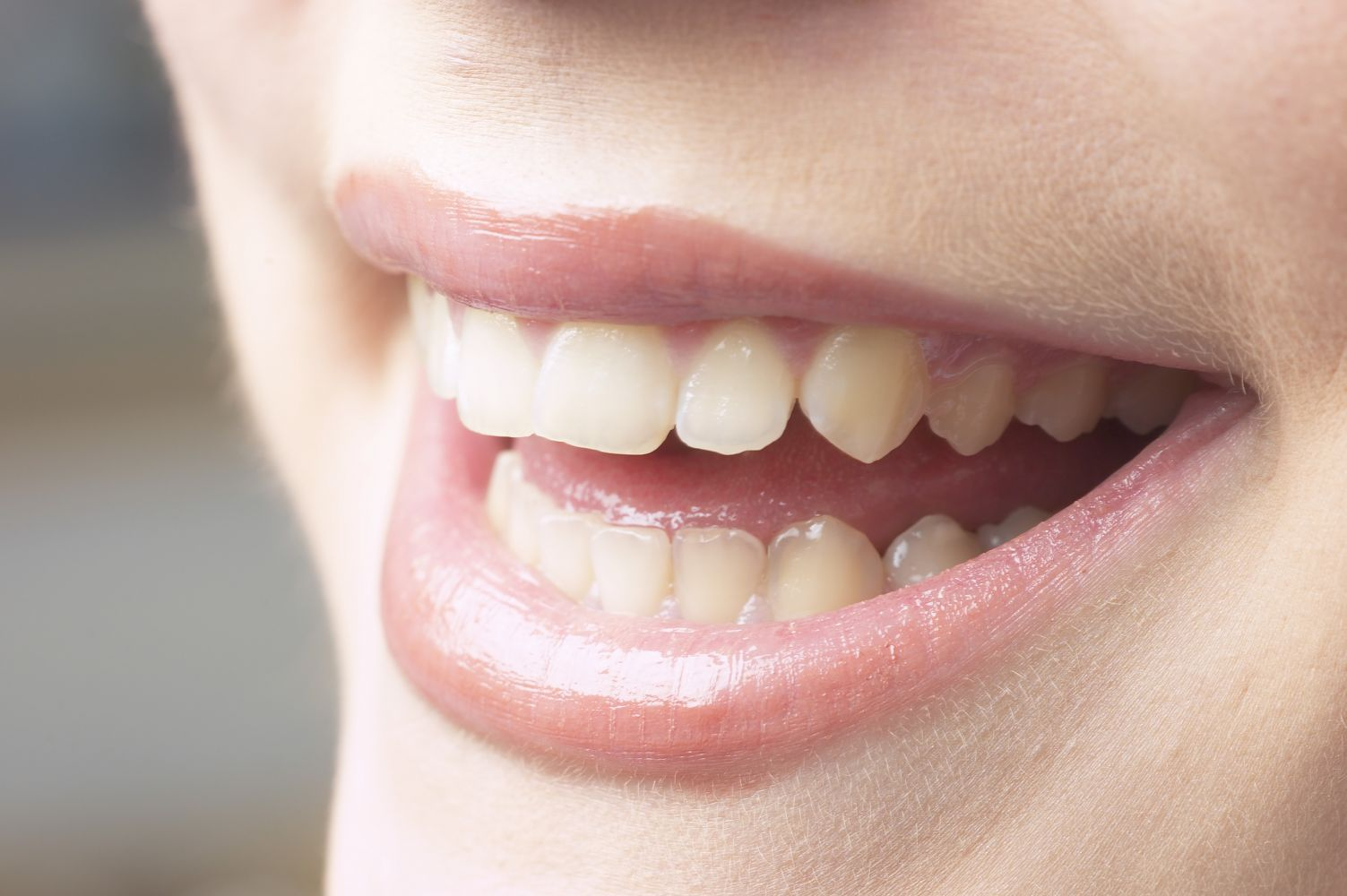 Healthy smile due to good dental health services in Anchorage, AK