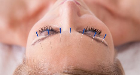acupuncture on the face