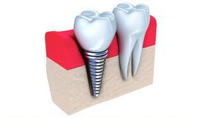 dental implant procedure - serving Albany, Colonie & Troy, NY