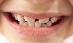 Orthodontist - serving Albany, Schenectady & Colonie, NY