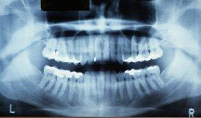 Preventive Dental Care in Watervliet, NY