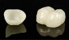 Restorative Dentist serving Albany, Troy & Schenectady, NY